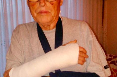 Un anciano de Mollet sufre graves lesiones tras ser atropellado por un niño con su monopatín
